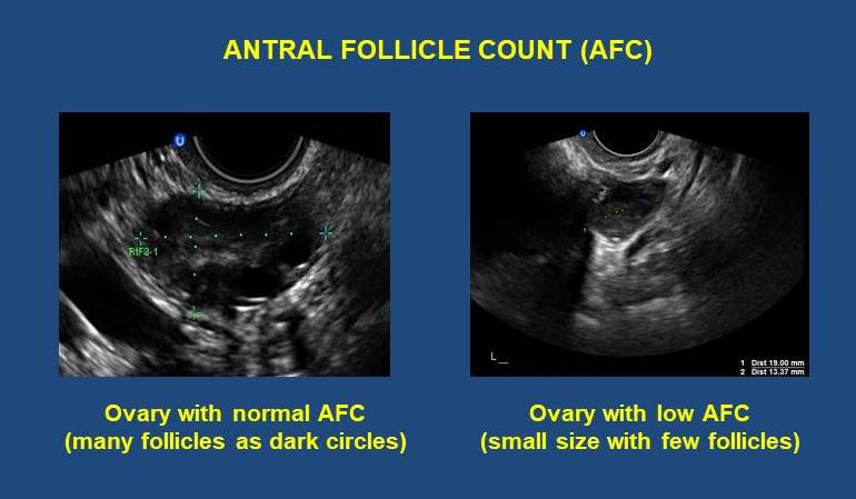 antral follicle count AFC